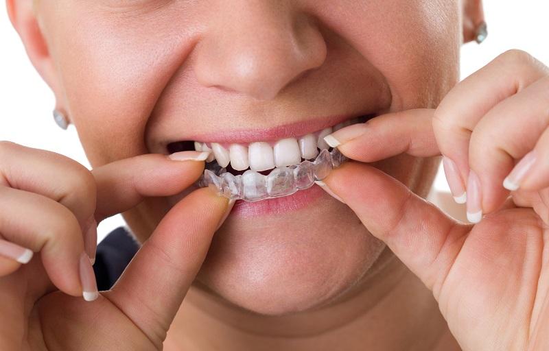 Kto pyta, nie błądzi – o co powinieneś zapytać swojego ortodontę?