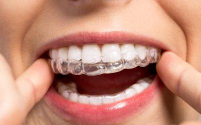 Medycyna spersonalizowana w ortodoncji