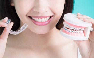 Przezroczyste aparaty ortodontyczne – czy zastąpią aparaty tradycyjne? Koniec z drutami?