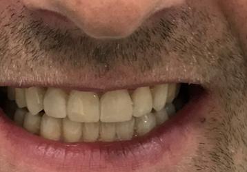 Połączenie ortodoncji przy zastosowaniu nakładek Invisalign® i protetyki daje spektakularne efekty!