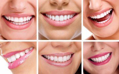 Koszty leczenia ortodontycznego – dlaczego warto postawić na nakładki Invisalign®