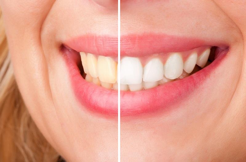 Wybielanie zębów a leczenie ortodontyczne