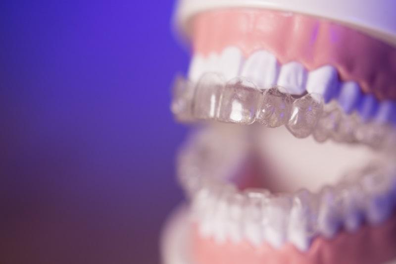 Stripping – zabieg stosowany przy leczeniu ortodontycznym
